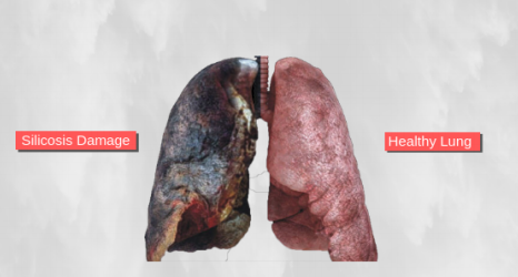 silicosis lungs from tile removal
